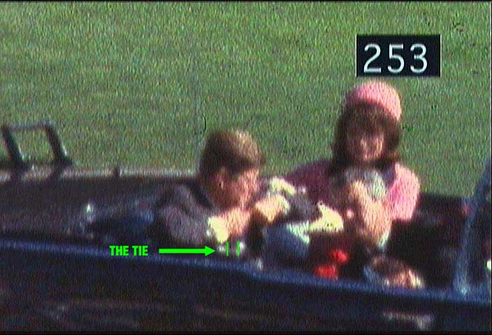 There Was No Bullet Wound in John F. Kennedy's Throat